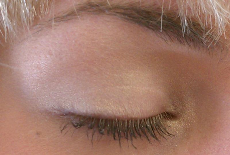 Infected Ingrown Hair On Eyelid Makeupsite